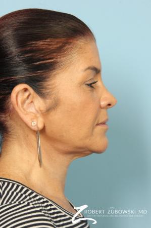 Neck Lift: Patient 10 - After Image 2