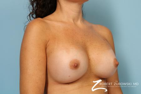 Breast Augmentation: Patient 40 - After Image 2