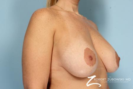 Breast Lift And Augmentation: Patient 19 - Before Image 2