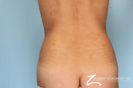 CoolSculpting®: Patient 6 - Before Image 1