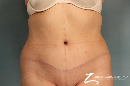 Tummy Tuck: Patient 11 - After Image