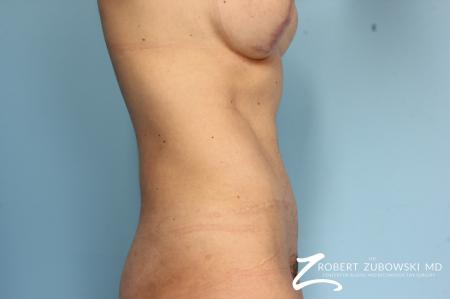 Tummy Tuck: Patient 6 - After Image 2