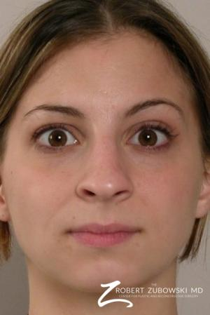 Rhinoplasty: Patient 6 - Before Image 1