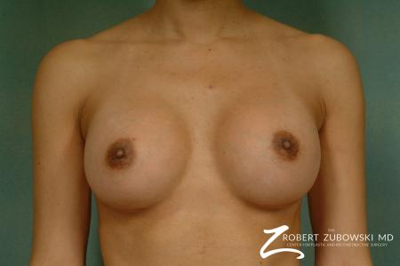 Breast Augmentation: Patient 32 - After Image 1