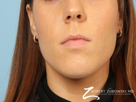 Permanent Lip Enhancement: Patient 2 - Before Image