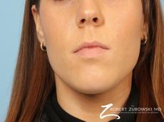 Permanent Lip Enhancement: Patient 2 - Before Image
