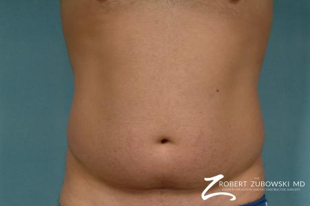 Liposuction: Patient 30 - Before Image 1