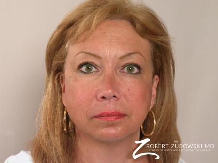 Blepharoplasty: Patient 19 - Before Image