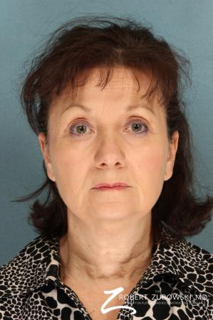 Facelift: Patient 22 - Before Image 1