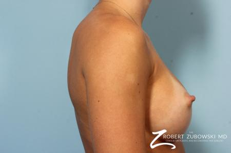 Breast Augmentation: Patient 37 - After Image 3