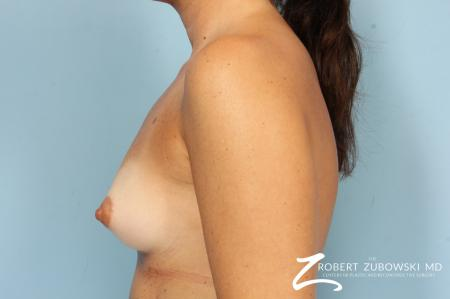 Breast Augmentation: Patient 40 - Before and After Image 5