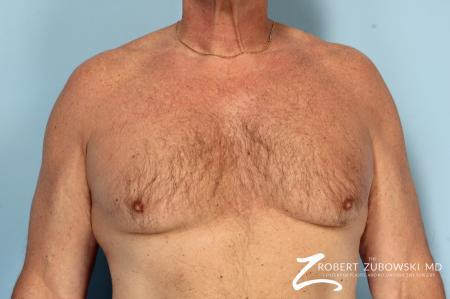 Gynecomastia: Patient 12 - Before Image