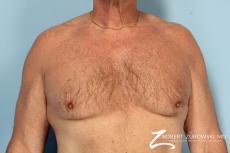 Gynecomastia: Patient 12 - Before Image