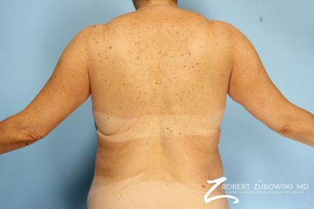 CoolSculpting®: Patient 2 - After Image 3