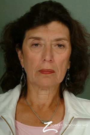 Brow Lift: Patient 6 - Before Image 1