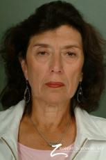 Brow Lift: Patient 6 - Before Image