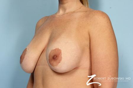 Breast Lift And Augmentation: Patient 19 - Before and After Image 3