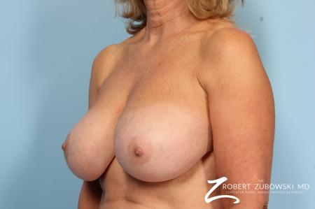 Breast Reduction: Patient 24 - Before Image 3