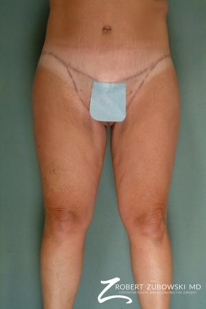 Thigh Lift: Patient 3 - After Image