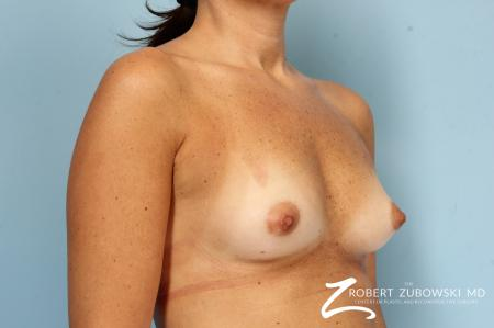 Breast Augmentation: Patient 40 - Before Image 2