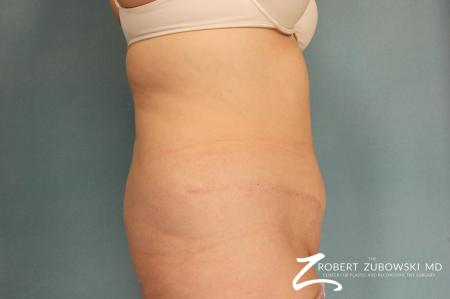 Tummy Tuck: Patient 11 - After Image 2