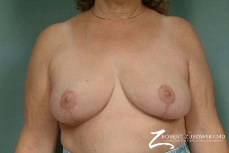 Breast Reduction: Patient 20 - After Image 1