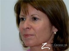 Blepharoplasty: Patient 11 - Before Image