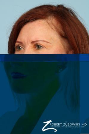 Facelift: Patient 29 - After Image 3