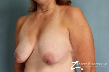 Breast Lift: Patient 11 - Before and After Image 2