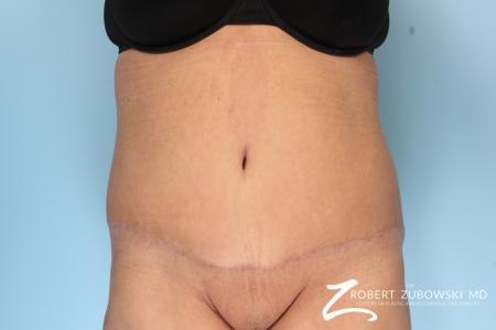 Tummy Tuck: Patient 19 - After Image