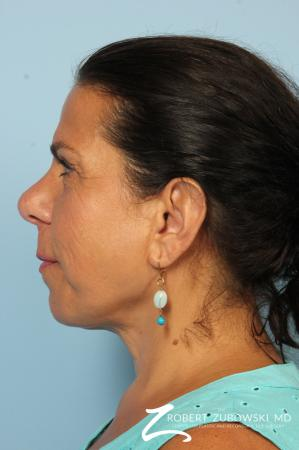 Neck Lift: Patient 9 - After Image 3