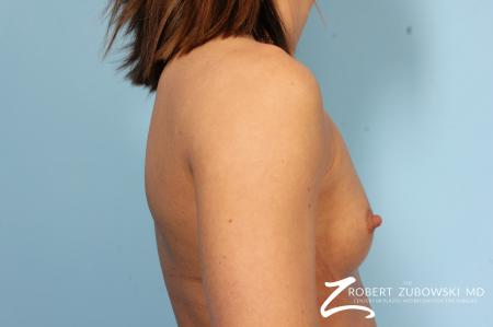 Breast Augmentation: Patient 37 - Before and After Image 3