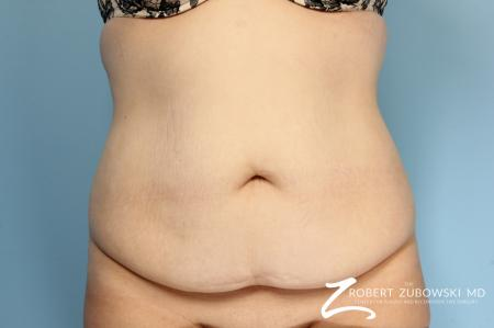 Tummy Tuck: Patient 17 - Before Image 1