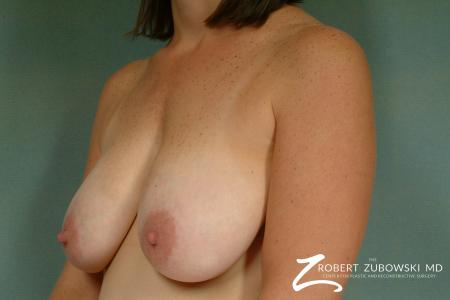 Breast Lift: Patient 9 - Before and After Image 2
