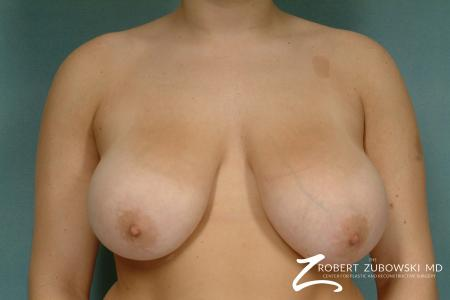 Breast Reduction: Patient 21 - Before Image 1
