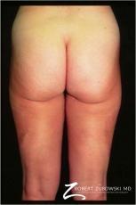 Liposuction: Patient 38 - After Image