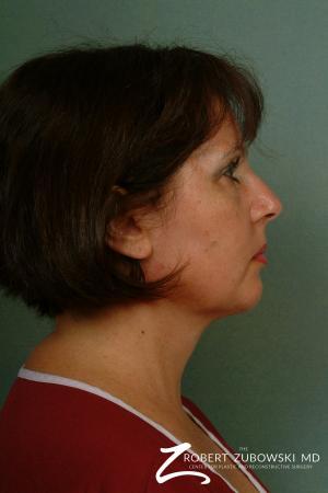 Neck Lift: Patient 8 - After Image 3