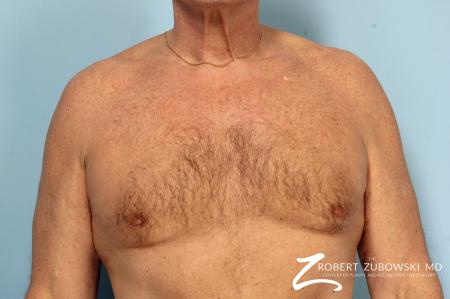 Gynecomastia: Patient 12 - After Image