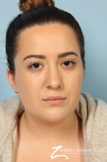 Rhinoplasty: Patient 21 - After Image