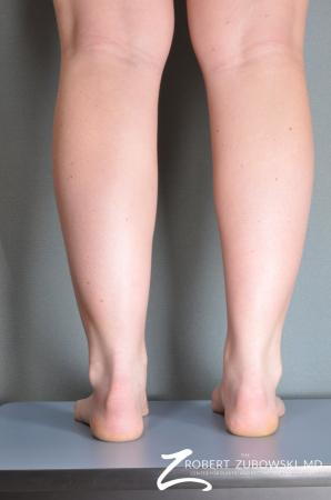 Liposuction: Patient 21 - Before and After Image 2