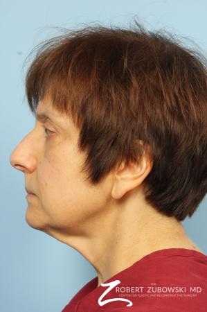 Neck Lift: Patient 1 - Before and After Image 3