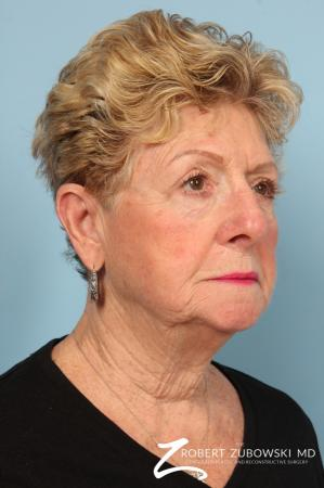 Blepharoplasty: Patient 30 - After Image 2