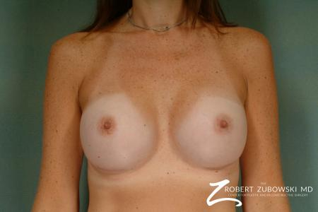 Breast Augmentation: Patient 27 - After Image 1