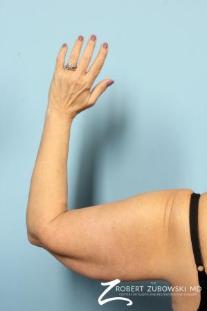 Arm Lift: Patient 5 - Before Image 3