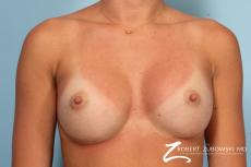 Breast Augmentation: Patient 37 - After Image
