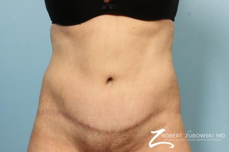 Body Lift: Patient 9 - After Image