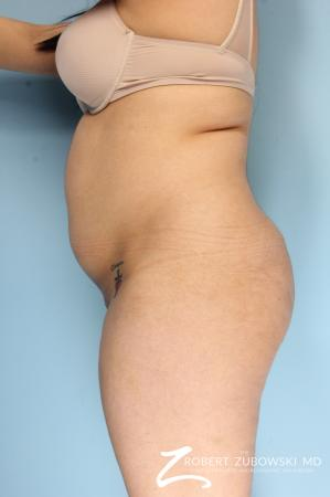 Butt Augmentation: Patient 4 - Before and After Image 2