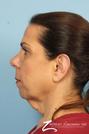Neck Lift: Patient 9 - Before and After Image 3