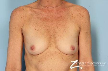 Breast Augmentation: Patient 39 - Before Image 1