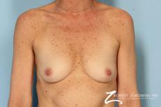 Breast Augmentation: Patient 39 - Before Image